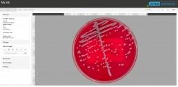 APAS Web Report showing Blood Agar Single Colony